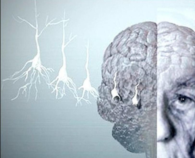Pilates un gran aliado en las enfermedades neurodegenerativas